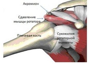 Жидкость в сухожилии плеча