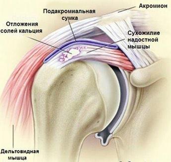 кальцинирующий тендинит надостной мышцы