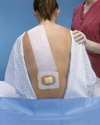 Болит спина после анестезии