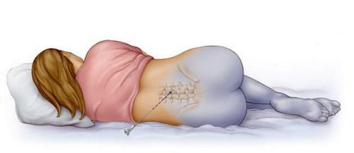 При карс рвчкрытим делается эпидуральная анестезия