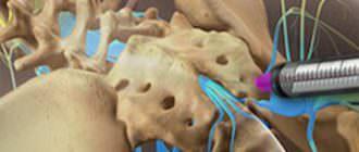 как проходит эпидуроскопия