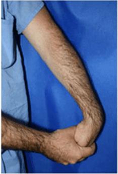 Лечение ультразвуком латерального эпикондилита видео