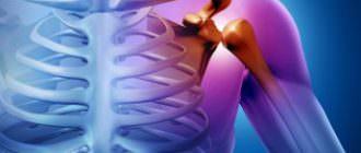 как лечить синовит плечевого сустава