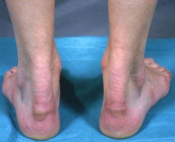 Боли впятке связаны стенопатией ахиллова сухожилия