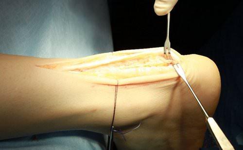 Повязку на ахиллово сухожилие