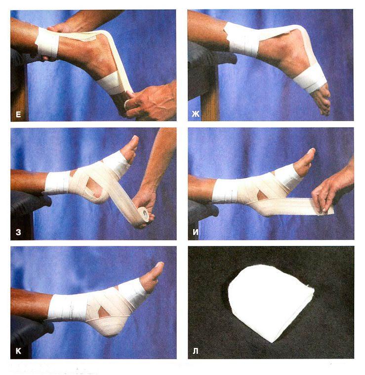 наложение повязки на стопу 2 этап