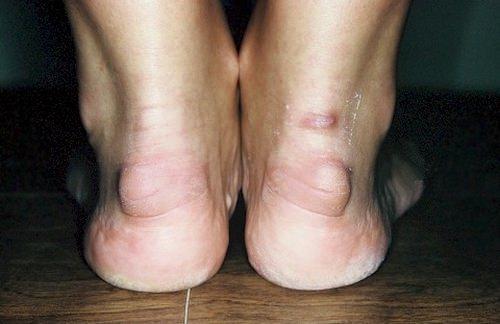 Тендиноз ахилова сухожилия
