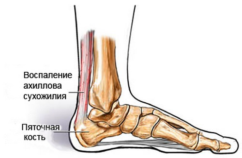 симптомы тендинита ахиллова сухожилия
