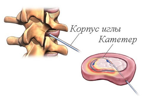 операция внутридисковая электротерамальная терапия