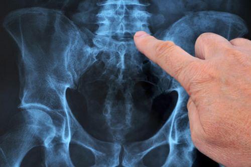 внутридисковая электротерамальная терапия при болях в спине