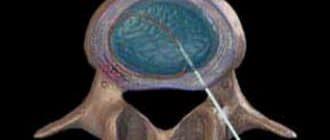 лечение острой боли в спине электротермальная терапия диска