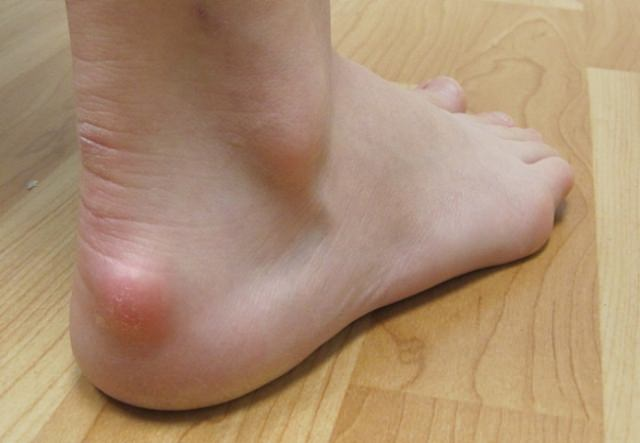 симптомы бурсита пятки