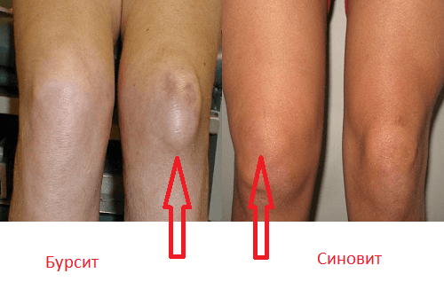 как отличить бурсит колена от синовита