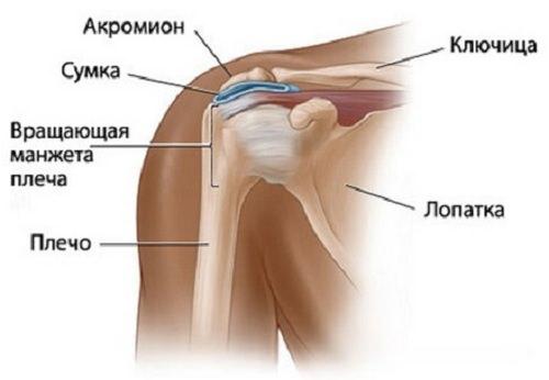 бурсит плечевого сустава: