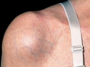 клинические симптомы и бурсита плечевого сустава