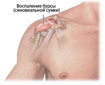 Что такое бурсит плечевого сустава и как его лечить