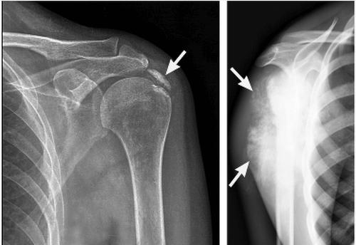 симптомы плечевого бурсита