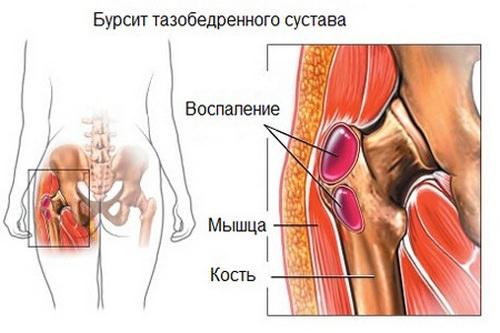 симптомы вертельного бурсита тбс