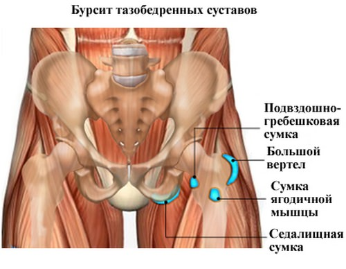 Бурсит тазобедренного сустава симптомы лечение
