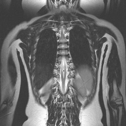 диастематомиелия спинного мозга