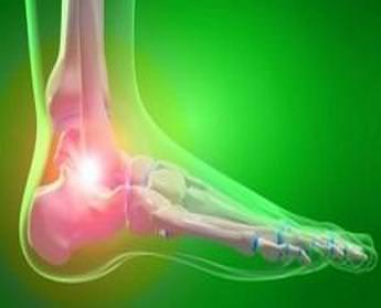 Синовит голеностопного сустава лечение — Суставы