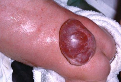 расщепление дужек myelomeningocele