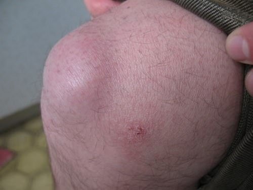 препателлярный бурсит симптомы
