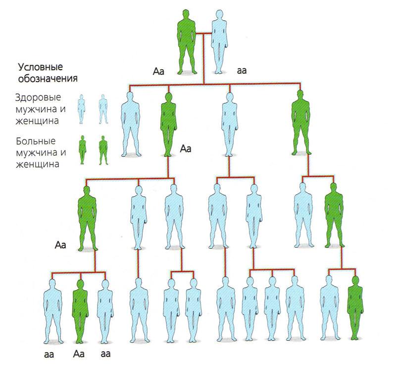 генетические причины синдрома короткой шеи
