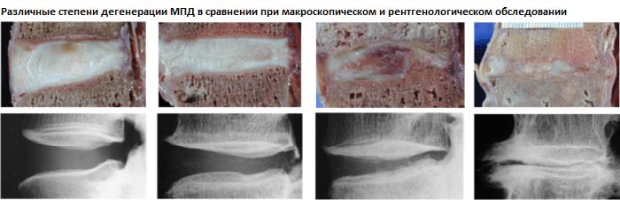 регенерация диска методом вертеброревитологии