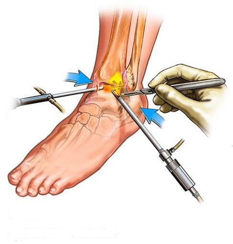 Синовит голеностопного сустава: причины, симптомы, лечение