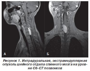 Спина мозговая опухоль