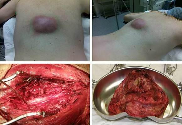 удаление опухоли позвоночника