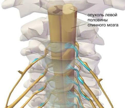 симптомы различия опухоли спинного мозга и грыжи