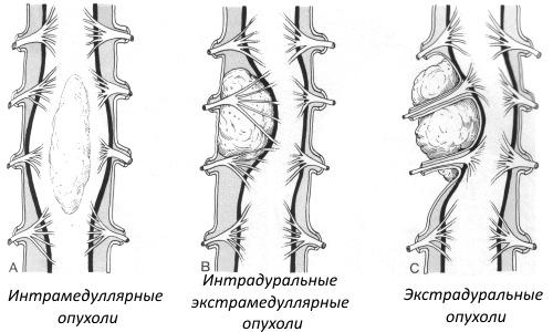 типы опухолей позвоночника и спинного мозга