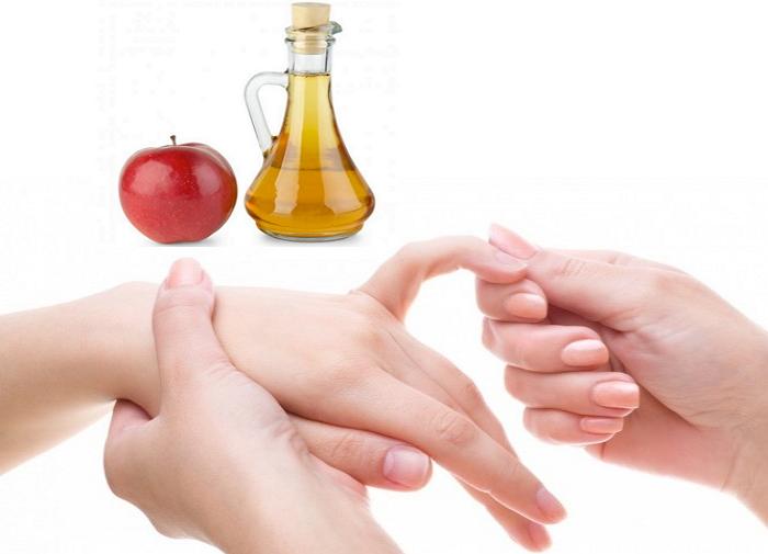 Яблочный уксус при артрите