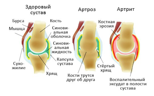 СИМПТОМЫ АРТРОЗА И АРТРИТА