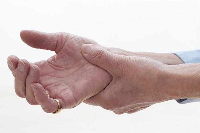 Обострение подагры - особенности лечения