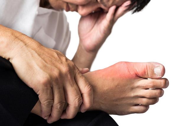 Подагра – симптомы и лечение у мужчин