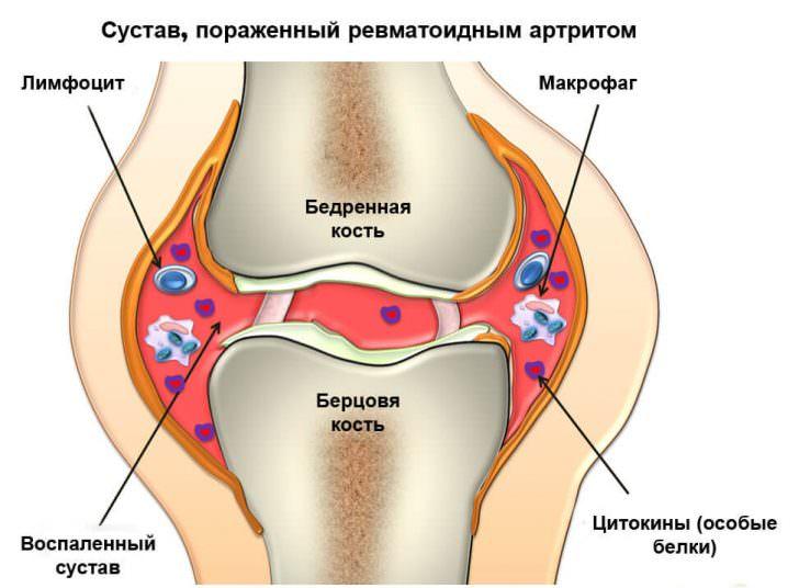 изображение коленных суставов на снимке