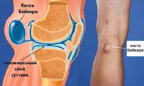 Аспирация сустава что это такое лечение растяжения в локтевом суставе