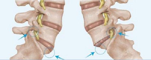 cervical spondylolithesis