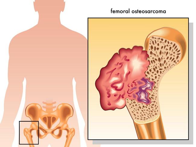 Остеогенная саркома причины симптомы лечение