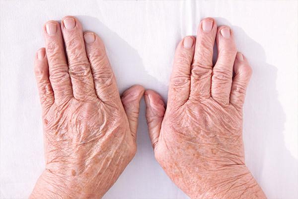 Лечение артроза кистей рук
