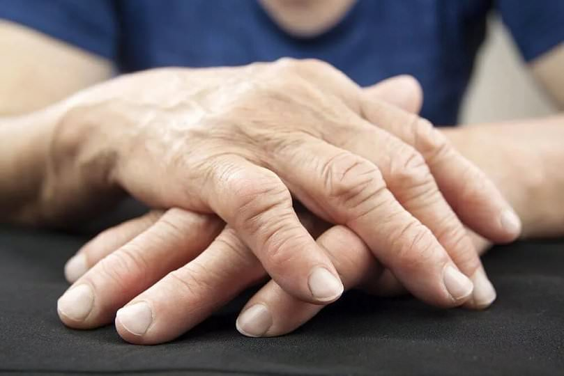 Артрит у детей симптомы и лечение воспаления суставов у ребенка