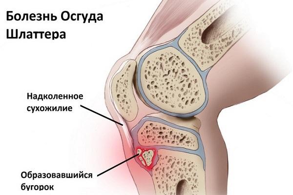 Хондромаляция суставного хряща надколенника 3 степени как обезболить коленные суставы