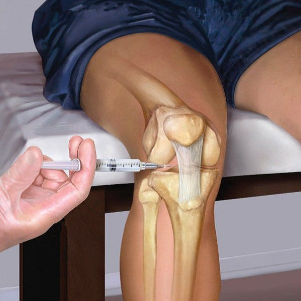Как удалить жидкость из коленного сустава в домашних условиях