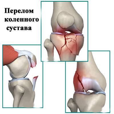 эластичные чулки при протезировании сустава