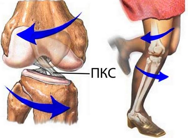 Ортез при надрыве связок коленного сустава как укрепить суставы и хрящи