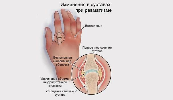 Ревматоидный полиартрит и деформирующий остеоартроз