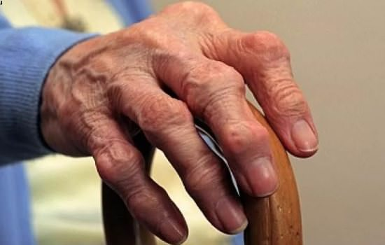 Лечение ревматоидного полиартрита одновременно всех суставов